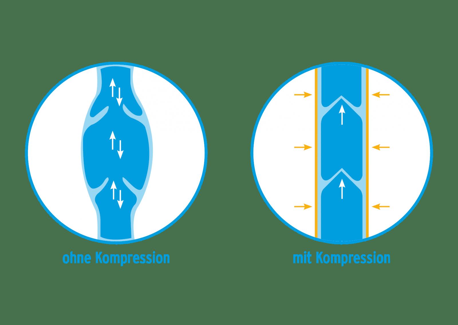 Kompressionstherapie bei Venenerkrankungen